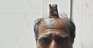 Homem desenvolve chifre na testa e ciência não explica